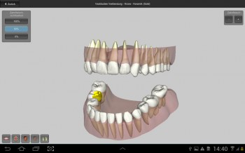 Delcam-DentCAD-2.www.Download.ir