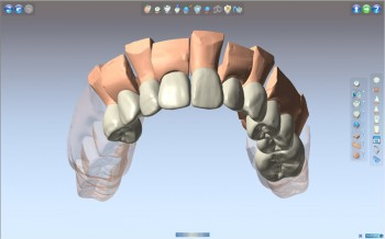 Delcam-DentCAD-3.www.Download.ir