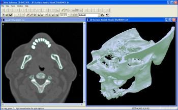 دانلود آخرین نسخه نرم افزار Software 3D-DOCTOR